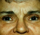 Eyelid Surgery Patient 42619 Photo 1