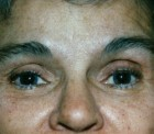 Eyelid Surgery Patient 42619 Photo 2