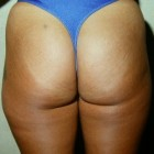Liposuction Patient 95034 Photo 1