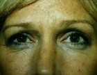 Eyelid Surgery Patient 67593 Photo 1