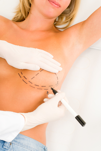 Herte breast augmentation (1)