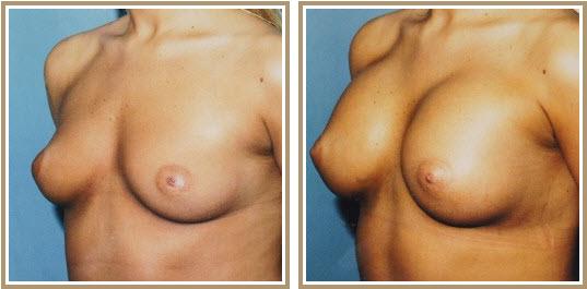 breast augmentation in las vegas